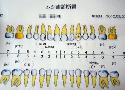 虫歯検査結果
